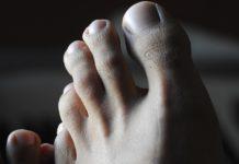 Grzybica paznokci stóp